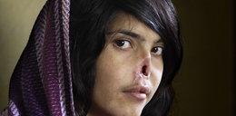Afganka odzyskuje twarz okaleczoną przez męża