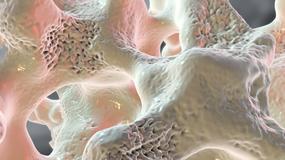 Fundacja My Pacjenci: Podczas pandemii o 36 proc. spadła liczba badań w kierunku osteoporozy