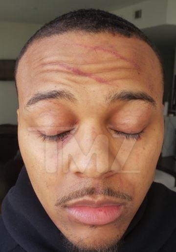 Bow Wow severely bruised after fight with girlfriend [TMZ]