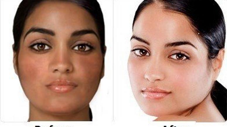 How To Lighten Skin Naturally - Fabmumng