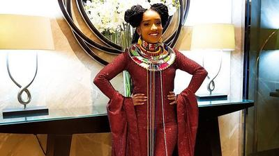 I suffer from seizures – Anita Nderu says as she explains the scar on her right hand