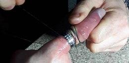 Przez obrączkę nieomal stracił palec!