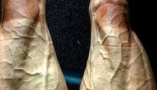 NEVEROVATNO Ovako izgledaju noge bicikliste posle 16 etapa Tur de Fransa