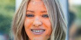 Co się stało z twarzą Zawadzkiej?