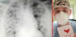 """Płuca zalane """"zapalnym gulaszem"""". Walka o każdy oddech. Przerażające słowa lekarza o koronawirusie"""