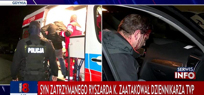 Syn znanego biznesmena nie odpowie za pobicie reportera TVP. Poseł PiS pisze pismo do ministra Ziobry