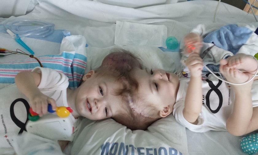 Lekarze rozdzielili zrośnięte główkami bliźnięta