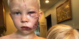 6-latek odniósł straszne rany, bo osłaniał siostrzyczkę. Pokazali jak teraz wygląda
