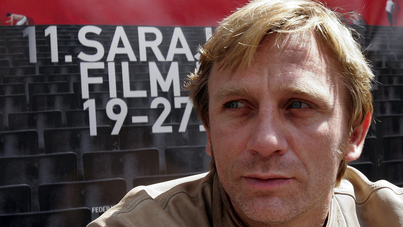 Po obejrzeniu najnowszej odsłony filmu o Bondzie, wyglądem Daniela Craiga zaniepokoił się doktor Asim Shahmalak, specjalista od transplantacji włosów