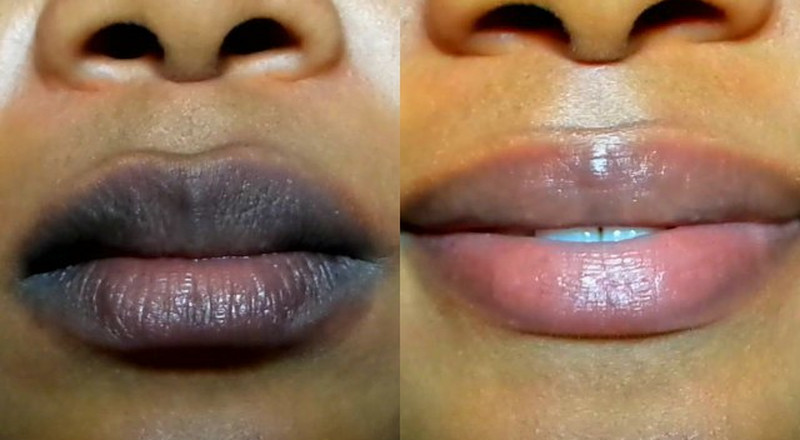 Here's a simple method to lighten dark lips naturally