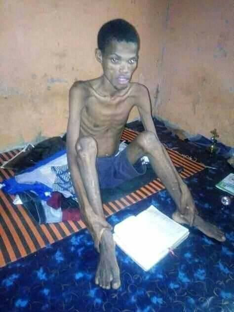 University student hospitalized after fasting for 41 days
