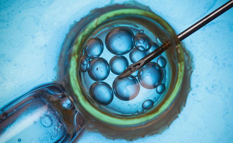In vitro w powiększeniu