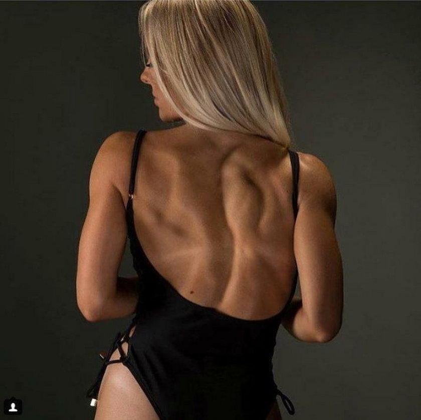 Ma problemy z kręgosłupem, odmówiła operacji. 25-latka robi furorę na Instagramie