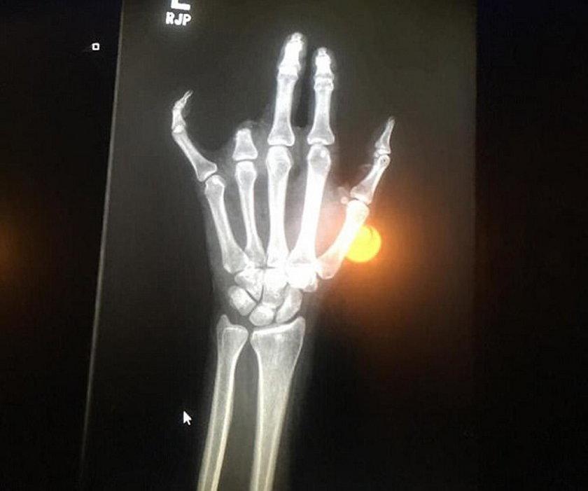 Chelsey Brown straciła palec przez obrączkę