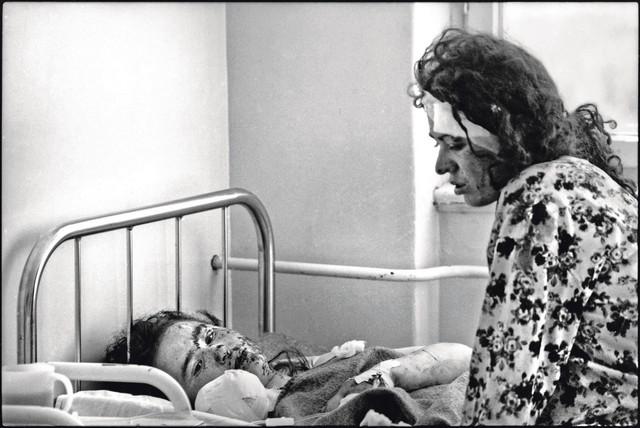 Albanske žene u bolnici pošto je NATO pogodio njihovu izbegličku kolonu