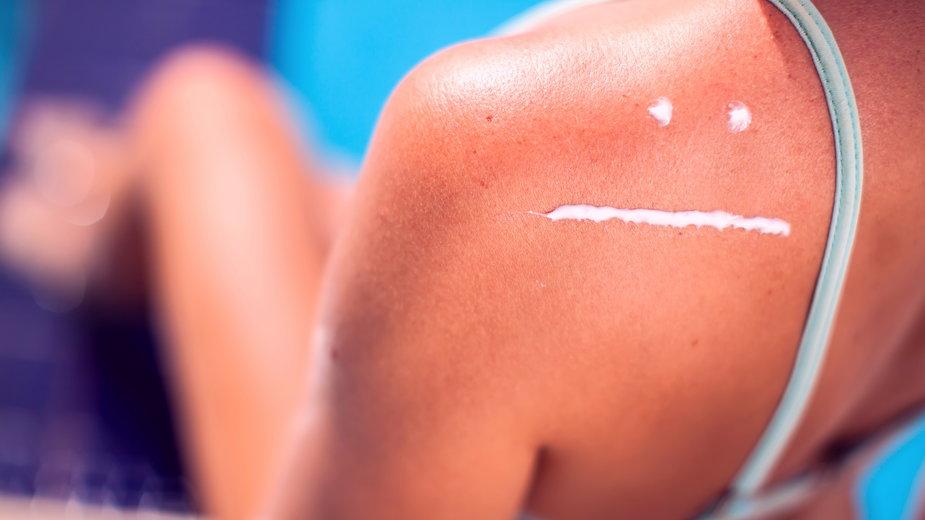 Podczas długiego przebywania na słońcu łatwo może dojść do oparzenia słonecznego - Aleksej/stock.adobe.com