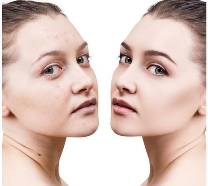 Zašto se pojavljuju akne