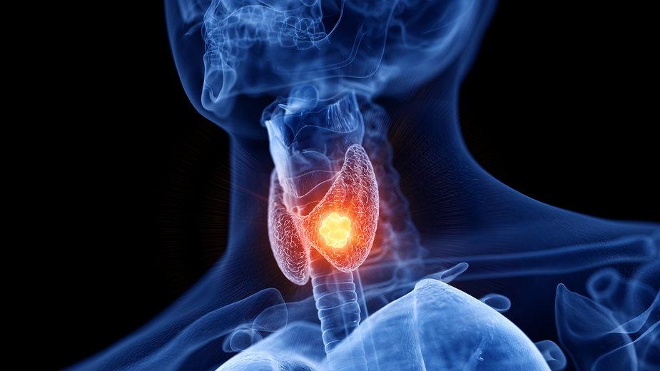 Hashimoto – jakie są objawy i przyczyny wystąpienia tej choroby?