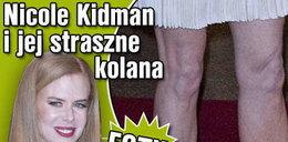 Nicole Kidman i jej straszne kolana. FOTY