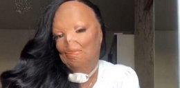 """Straciła twarz przez szampon na wszy. Uczyniło ją to """"lepszą osobą"""""""
