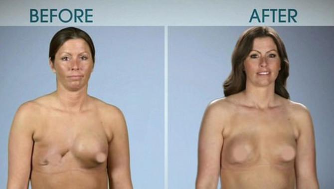 Džesi pre i posle operacije