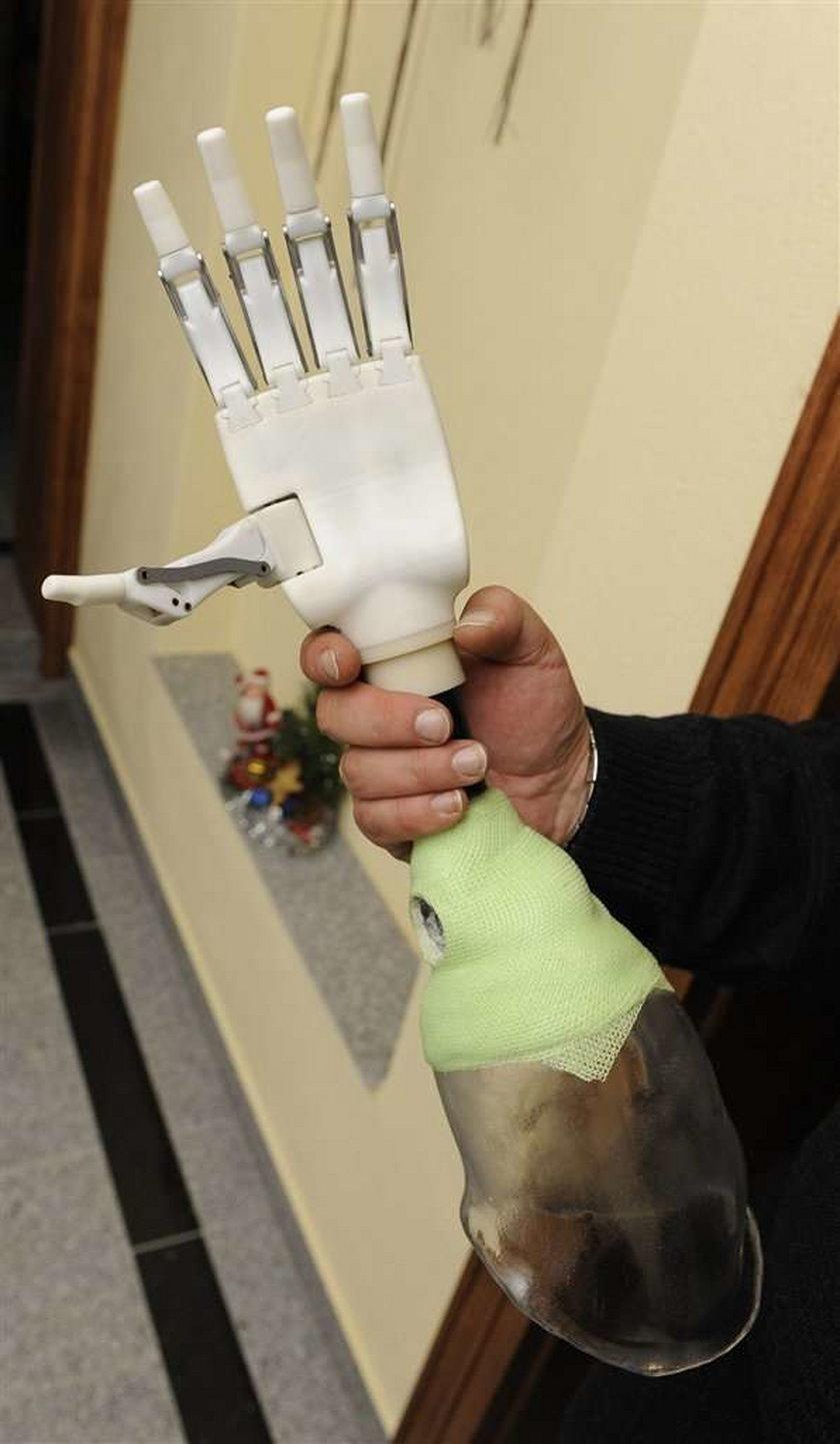 Dostałem nową rękę. ZDJĘCIA