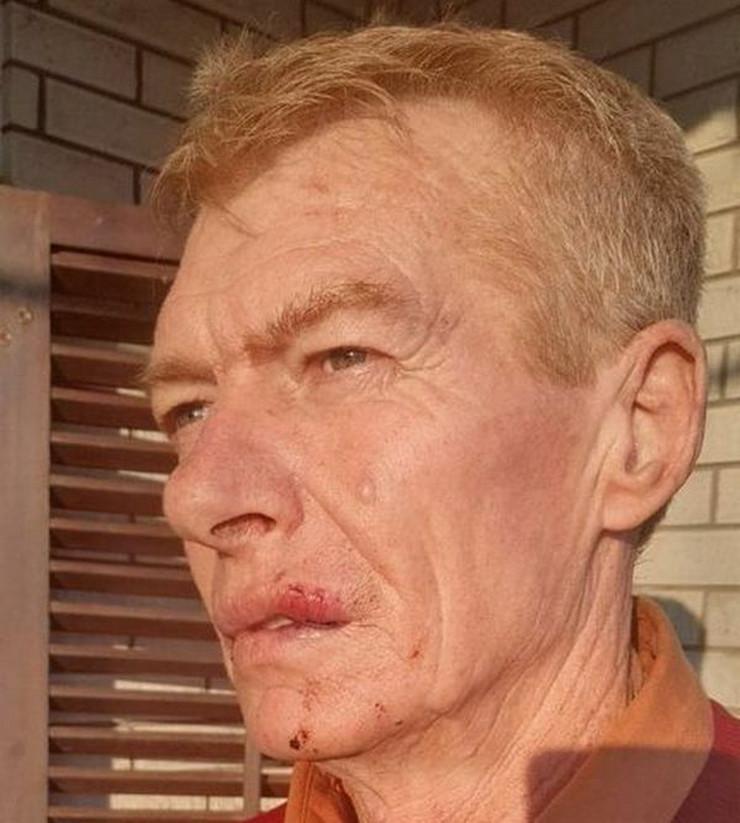 Predrag Petković Žuća vozač hitne pomoći pretučen Leskovac