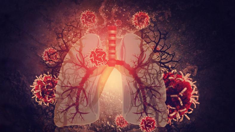 Płuca zainfekowane wirusami i bakteriami