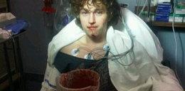 Brat celebrytki omal nie udusił się krwią
