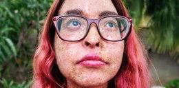 Blogerka cierpi na rzadką chorobę. Żyje jak wampir