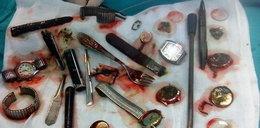 Polak połknął 6 zegarków, widelec i zapalniczki