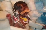 beba operacija srca01