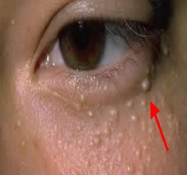 távolítsa el a szem alatti zsírt természetesen