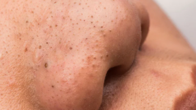 4 simple remedies to get rid of pimples on the nose