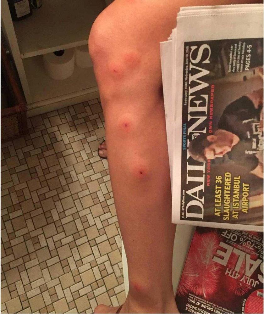 Modelka obudziła się z ranami na całym ciele, oskarża hotel