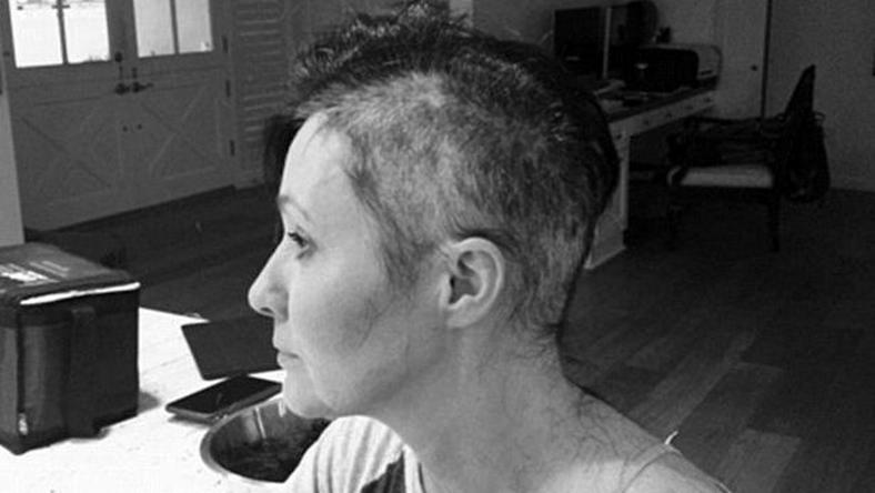 Shannen Doherty shaves head as she battles Breast Cancer