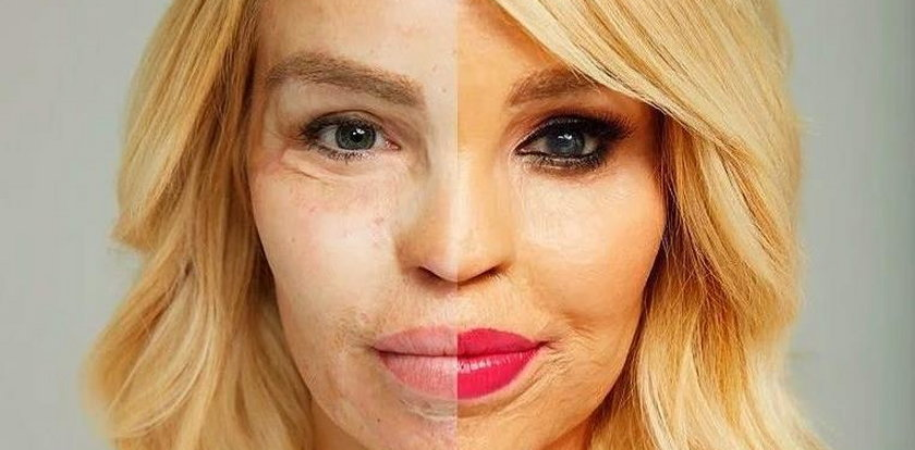 Oblana kwasem modelka pokazała, jak wygląda bez makijażu