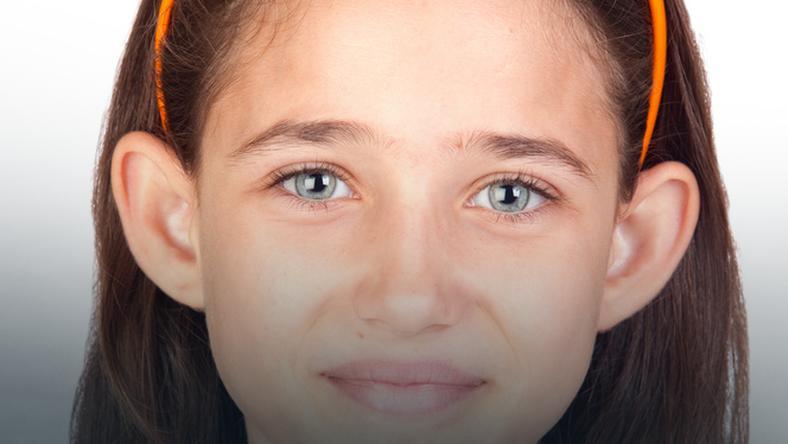 Odstające Uszy Dziecka Odstające Uszy U Niemowlaka Co