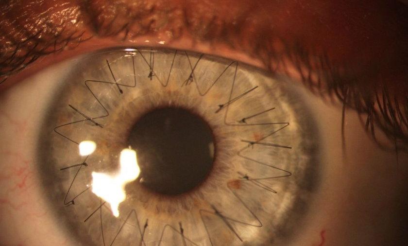 Oko po przeszczepie