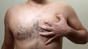 Męski biust - problem bez tabu