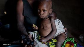 95 milionów dzieci cierpi przez głód. Skutki są tragiczne