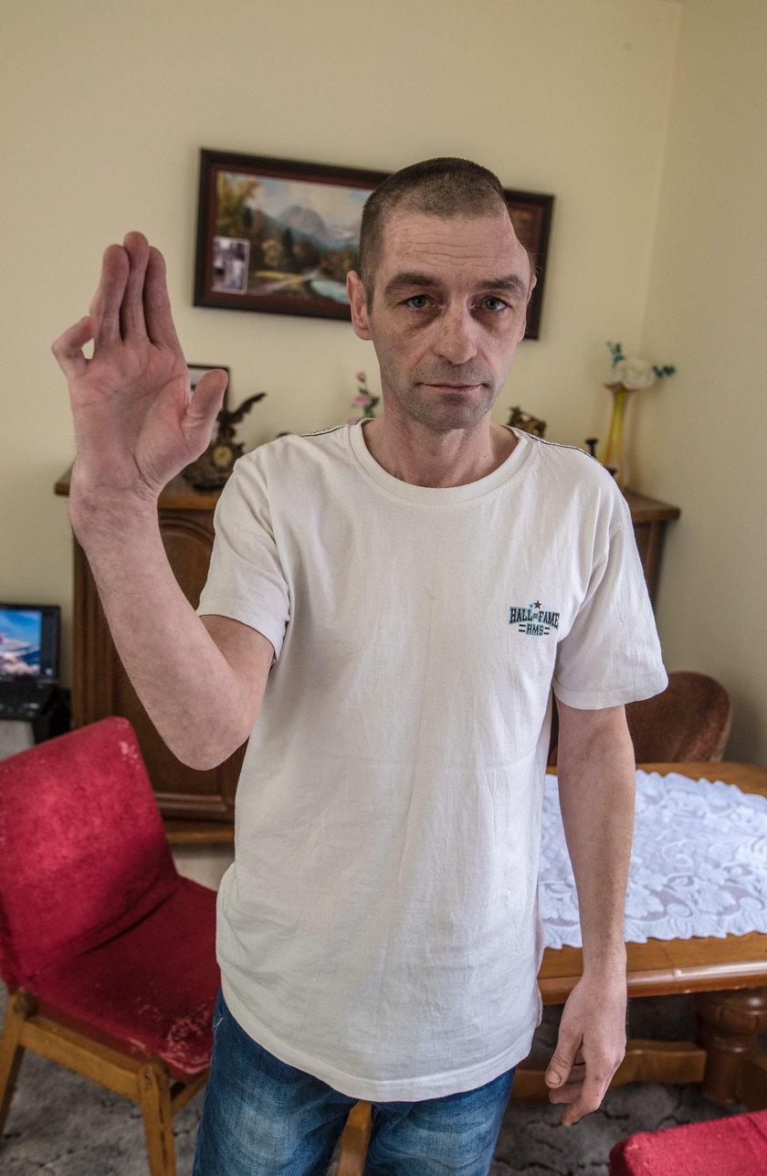 Mariusz Snita przeszedł gehennę po operacji ręki