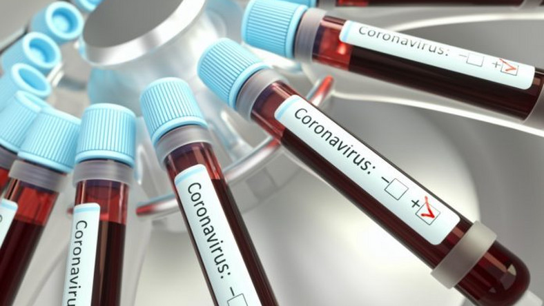 Coronavirus: South Africa, Egypt, 3 others record the highest recoveries from the pandemic in Africa