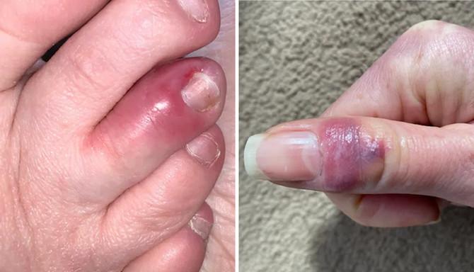 Ovako izgledaju kovid prsti na nogama i rukama, ustupljena fotografija: COVID Symptom Study