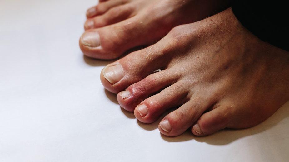 """""""Covidowe palce"""" to czasem jedyny objaw zakażenia koronawirusem"""