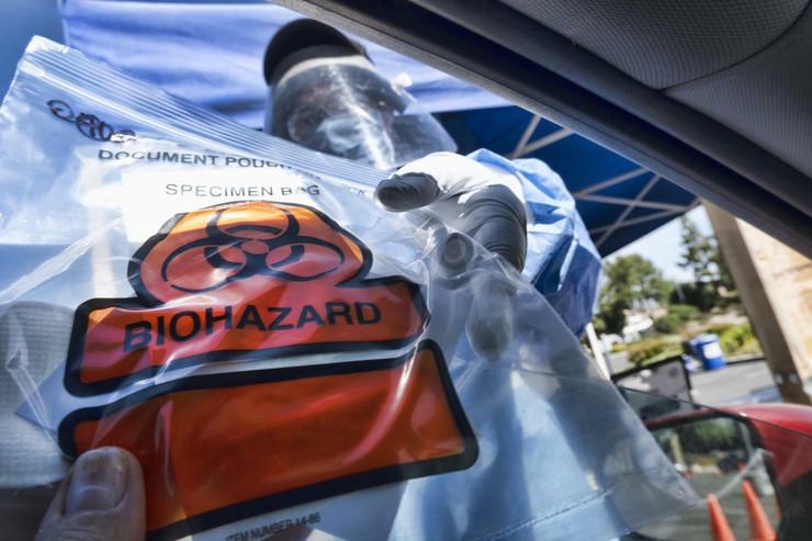 koronavirus test foto Tanjug AP Richard Vogel