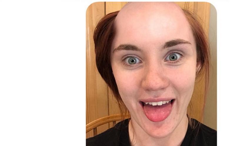 Heftiger prank versuch mit app diese glatze kannst du knstlich mit einer app erzeugen altavistaventures Gallery