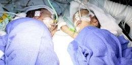 Bliźniaczki miały umrzeć, lekarze dokonali cudu