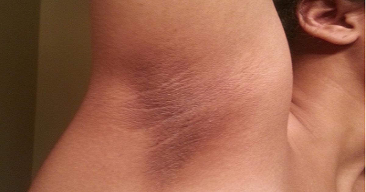 3 quicks ways to get rid of armpit lumps - Pulse Nigeria