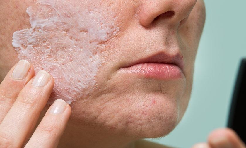 Najlepsze sposoby na blizny to te, które działają. Rzadko kiedy można bliznę usunąć niemal całkowicie, ale są sposoby, dzięki którym może ona się stać jaśniejsza, mniejsza i przypominająca swą strukturą skórę.